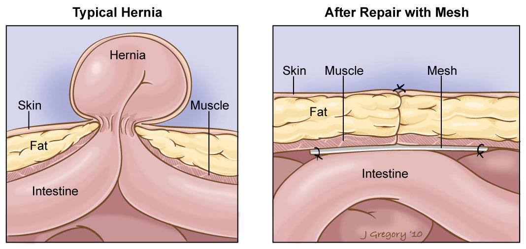 Hernia Mesh Repair