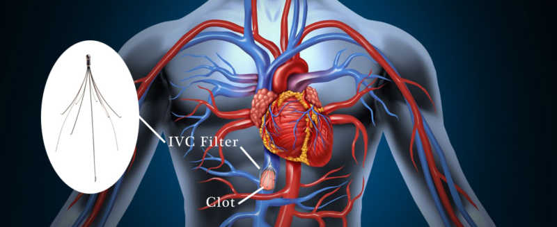 Causes of IVC Filter Breakage
