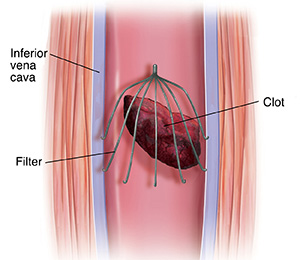 Blood Clot IVC Filter Causes