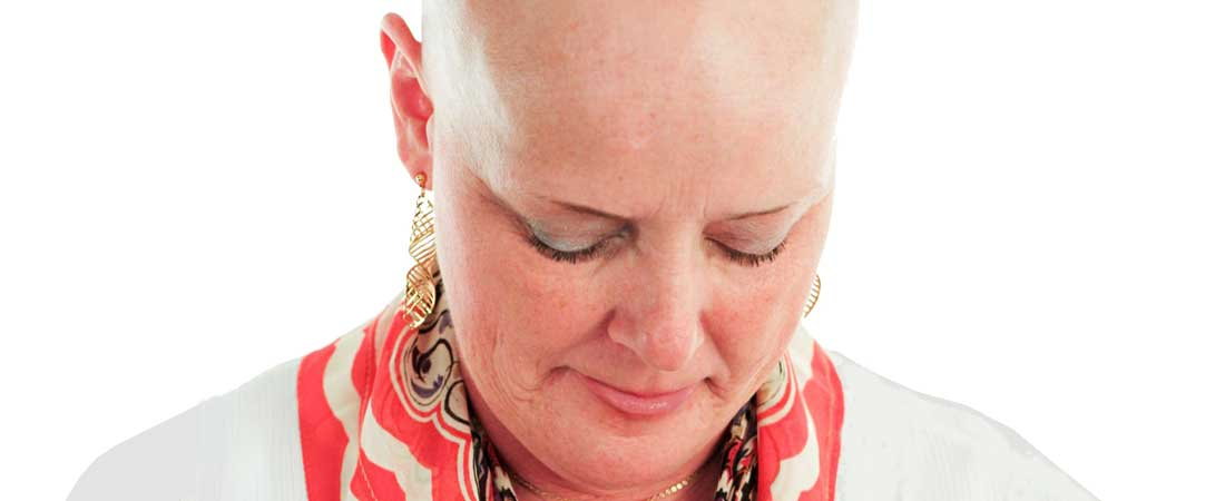 taxotere chemo hair loss lawyers