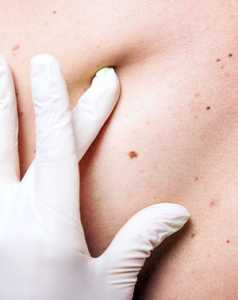 ED Drug Melanoma Skin Cancer